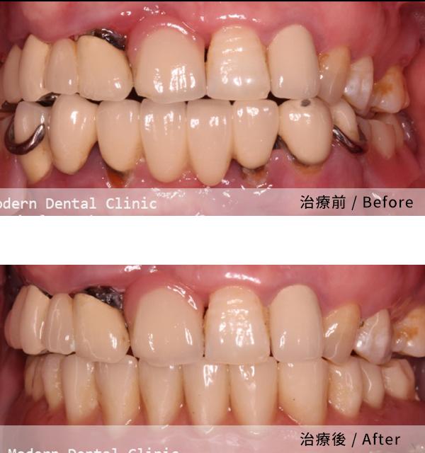 當代的植牙手術讓我非常推薦 2