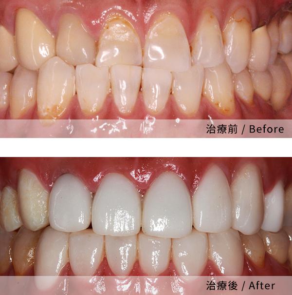 當代解決了我長期以來的牙齒問題 2